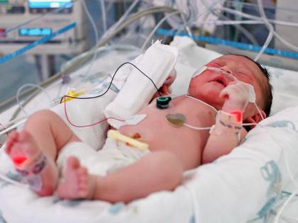 Sepsis novorodjenčeta
