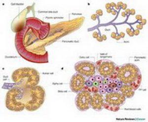 Pankreasna litijaza