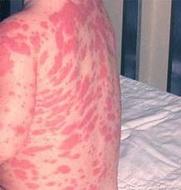 Alergija_na_penicilin