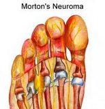 Morton_neuroma