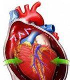 Perikardni_izliv_i_tamponada_srca