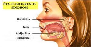 Sjogrenov sindrom