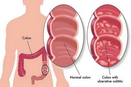 Ulcerativni kolitis