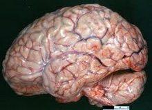 sekundarni-gnojni-meningitisi