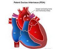 Ductus_arteriosus_persistens