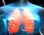 Karcinom_pluća