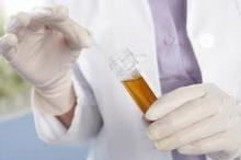 ta_nam_govori_boja_urina1