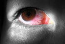 Krvave_oči