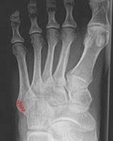 prelomi-metatarzalnih-kostiju-fractura-ossis-metatarsalis