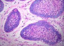Ameloblastom