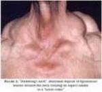 Lipoblastomatoza