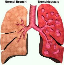 benigni_tumori_bronha_i_pluca