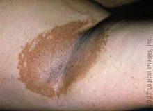 Eritrazma