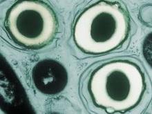 haemophilus-ducreyi