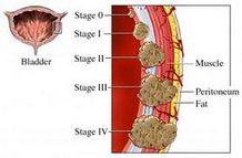 tumori-urinarnog-trakta-i-mokracne-besike