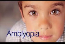 Ambliopia