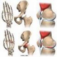 Enteropatijski-artritis