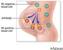 rh-faktor-i-trudnoca