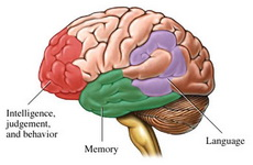 Alzheimerova-bolest