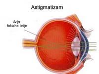 astigmatizam 2