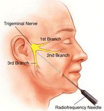 neurologija-trigeminusa