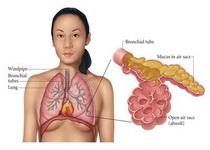 micoplasma-pneumoniae