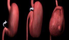 akutna-dilatacija zeluca