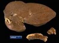 hepaticna-pelioza