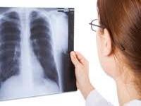 Akutno plućno srce-Cor pulmonale acutum