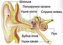 Barotrauma srednjeg uha