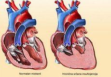 Hronična-srčana-insuficijencija
