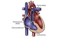 Stenoza-plućne-arterije