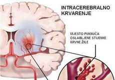 intracerebralno-krvarenje