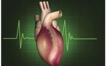 ventrikularna aritmija