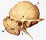petrozitis