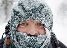 promrzline i opekotine nosa