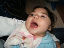 mikrocefalija