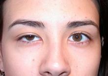 urodjene-malformacije-ocnog-kapka
