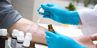 Da li postoji alergija sa negativnim alergoloskim testovima