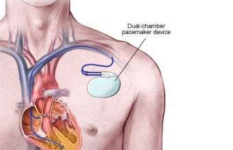 Kardiovaskularni bolesti kod mledje populacije