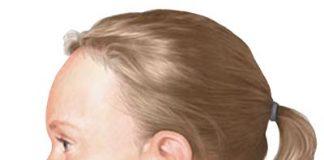 Oteceni limfni cvorovi na vratu deteta