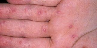 Virusno oboljenje usta-dlanova i tabana