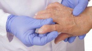 Da li je ista bolest osteoartritis i reumatoidni artritis?