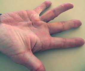 Dupuytrenova kontraktura ili Vikinška bolest