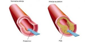 Da li je ateroskleroza pratilac starenja