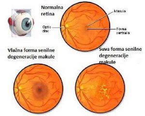 Makularna degeneracija oka