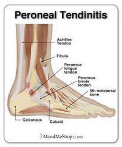 Tendinitis i tendosinovitis