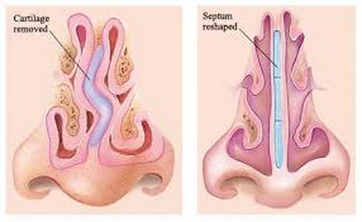 Operacija nosa iz zdravstvenih razloga