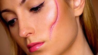 Hipertrofični ožiljci