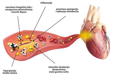 Značaj homocisteina u vezi oboljenja srca